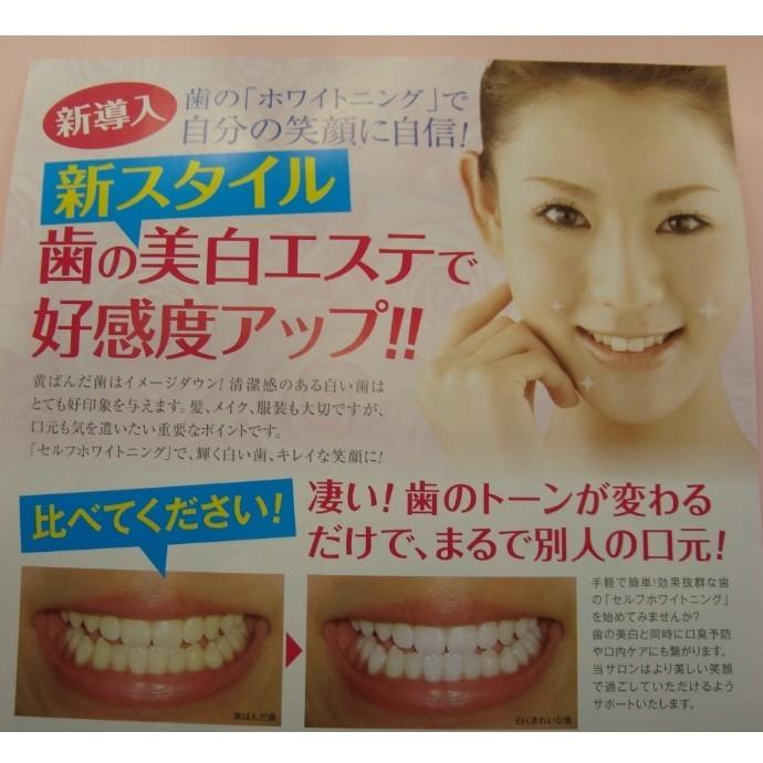 歯の美白エステ 『セルフホワイトニング』 始めませんか?!